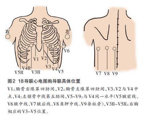 十八导联心电图的重要临床意义
